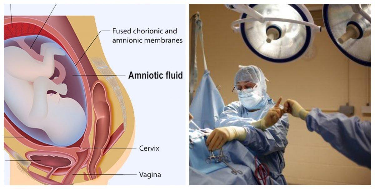 Ce este embolia amniotica -complicatia care a adus-o pe Andreea Balan in pragul mortii | Demamici.ro