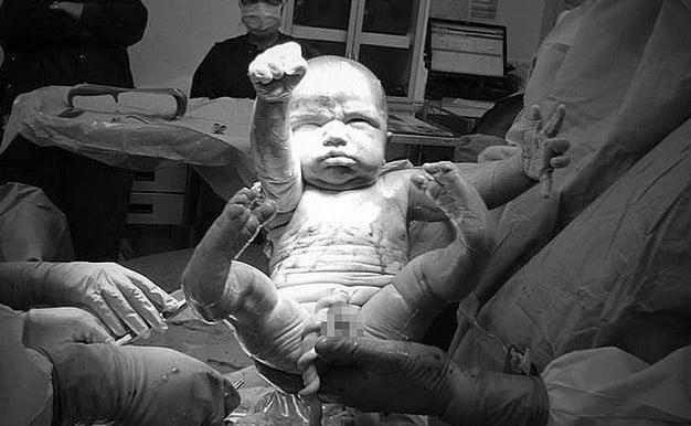 O intrare de Superman! Fotografia cu bebelusul supererou a fost facuta la cateva secunde dupa nastere si a devenit celebra   Demamici.ro