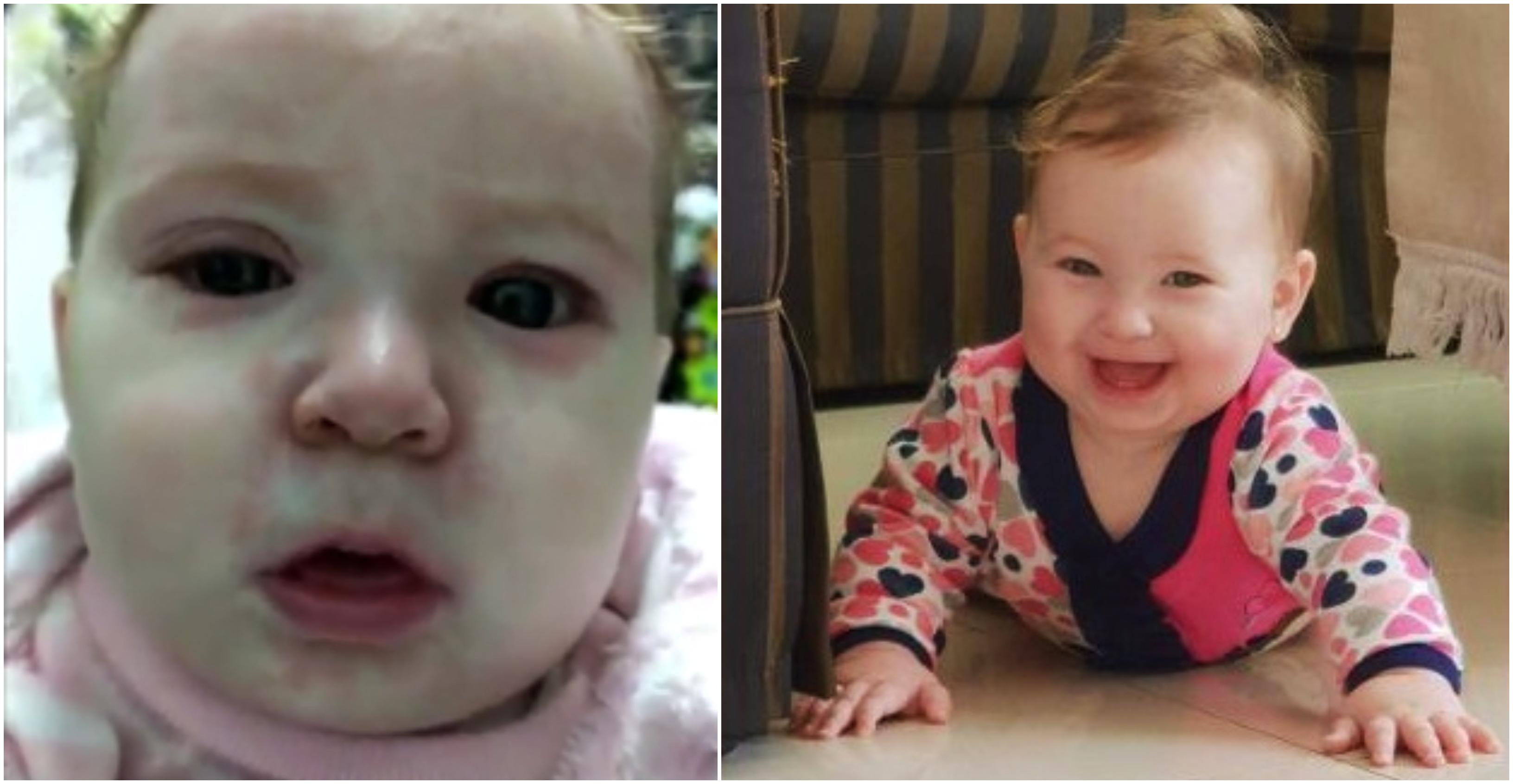 O Fetita De 8 Luni A Ajuns In Stare Grava La Spital Cu Rujeola