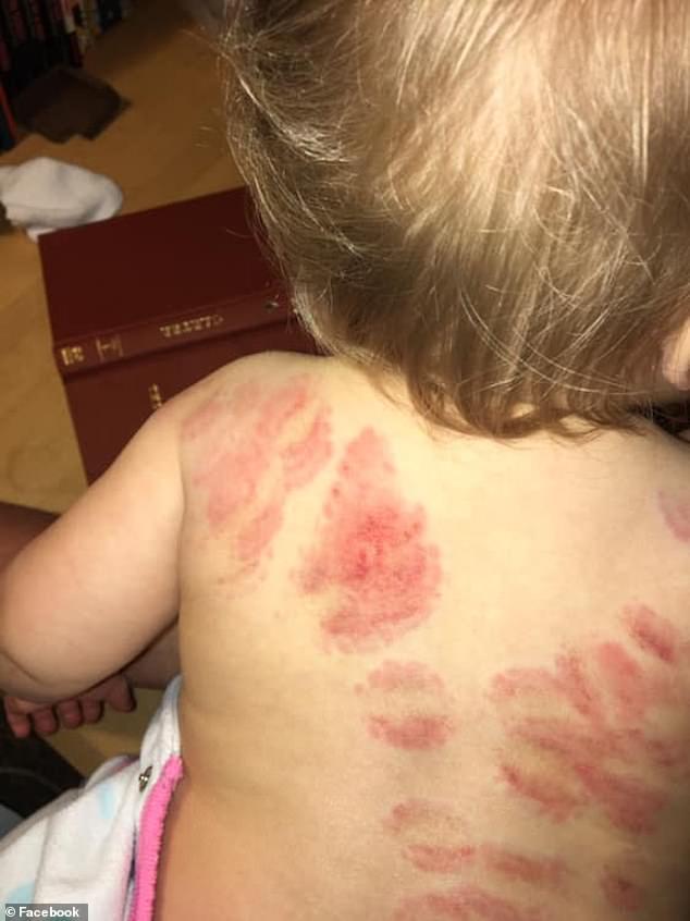O fetita de 15 luni s-a intors de la gradinita cu 25 de muscaturi pe corp | Demamici.ro