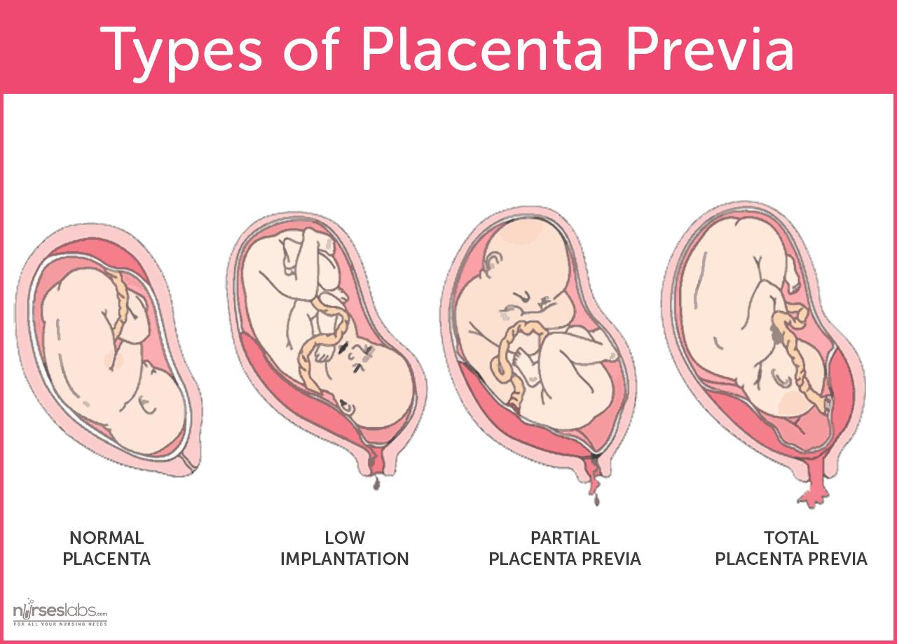 Placenta praevia - ce este si care sunt simptomele (1)