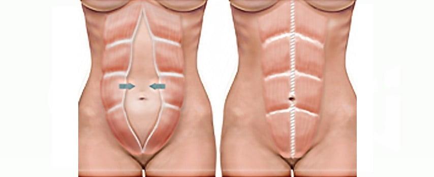 """Am nascut, dar burta mea arata de parca as fi insarcinata in 3,4 luni!"" Ce trebuie sa stii despre diastaza abdominala| Demamici.ro"
