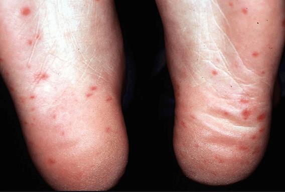 Totul despre boala mana-gura-picior
