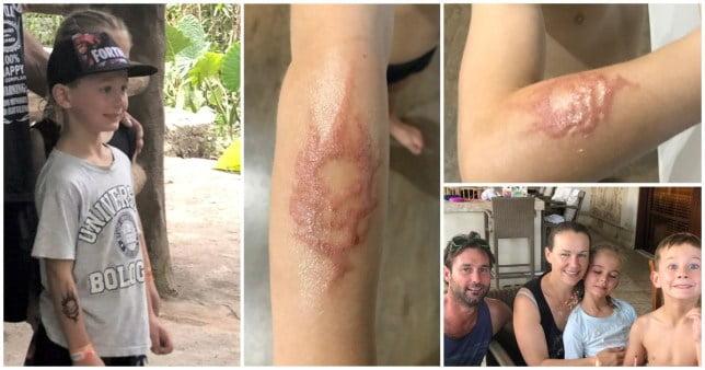 Un baietel, in agonie dupa ce un tatuaj cu henna i-a lasat cicatrici pe viata | Demamici.ro
