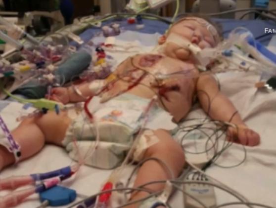 Si-a pierdut fiul de 2 ani, intr-un mod tragic, dar a putut sa-i asculte inca o data bataile inimii | Demamici.ro
