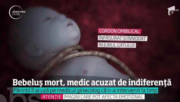 I-a murit bebelusul in burta la 34 de saptamani. Parintii acuza medicul de malpraxis | Demamici.ro