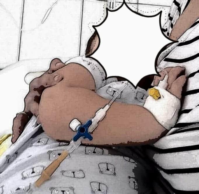 Un baietel de 1 an si 11 luni s-a inecat cu o aluna care apoi i-a ajuns in plaman! Mama trage un semnal de alarma | Demamici.ro