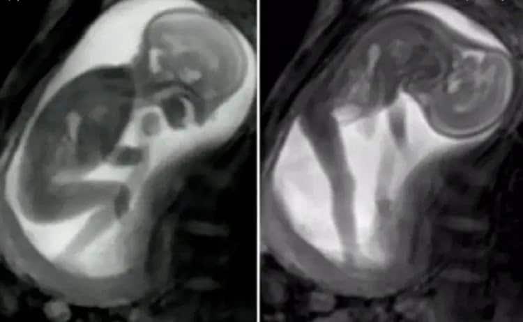 Loviturile bebelusului in burtica. De ce este important sa le monitorizam