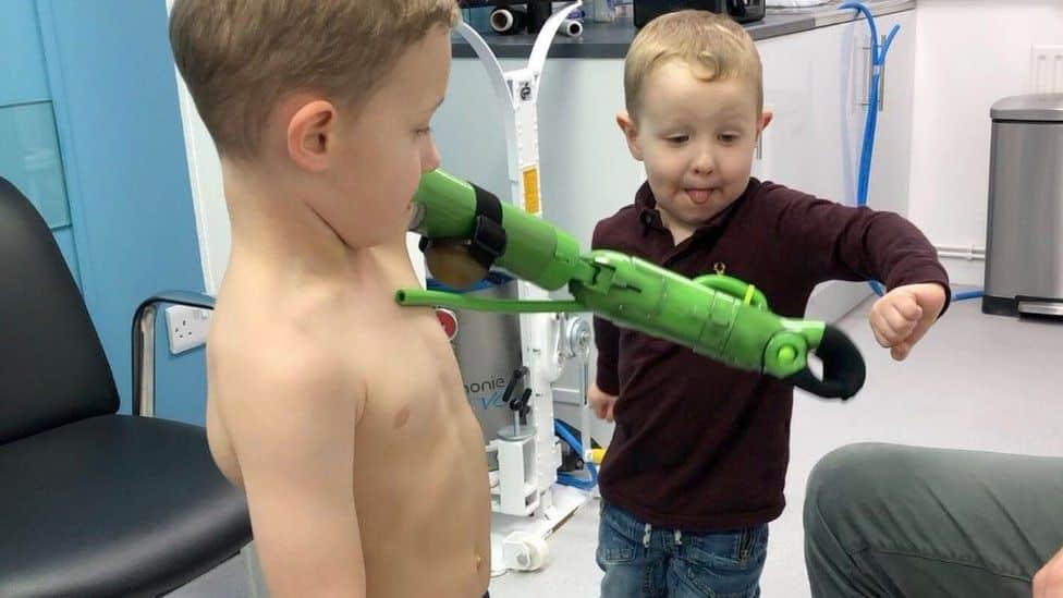 Un baietel a primit o proteza bionica si isi poate imbratisa acum fratiorul