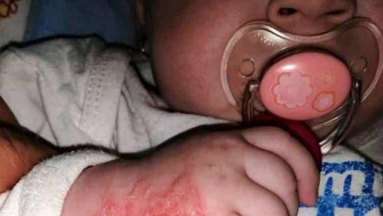 Bebelus de 5 luni, plin de rani in spital dupa ce a facut alergie la leucoplast | Demamici.ro