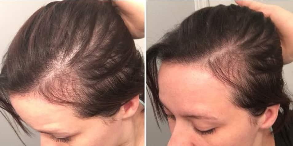 Căderea părului dupa naștere. TOP remedii naturale