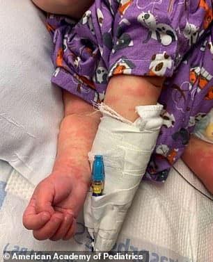 Bebeluș de 6 luni, diagnosticat cu boala Kawasaki și COVID-19. Legătura bizară descoperită de medici