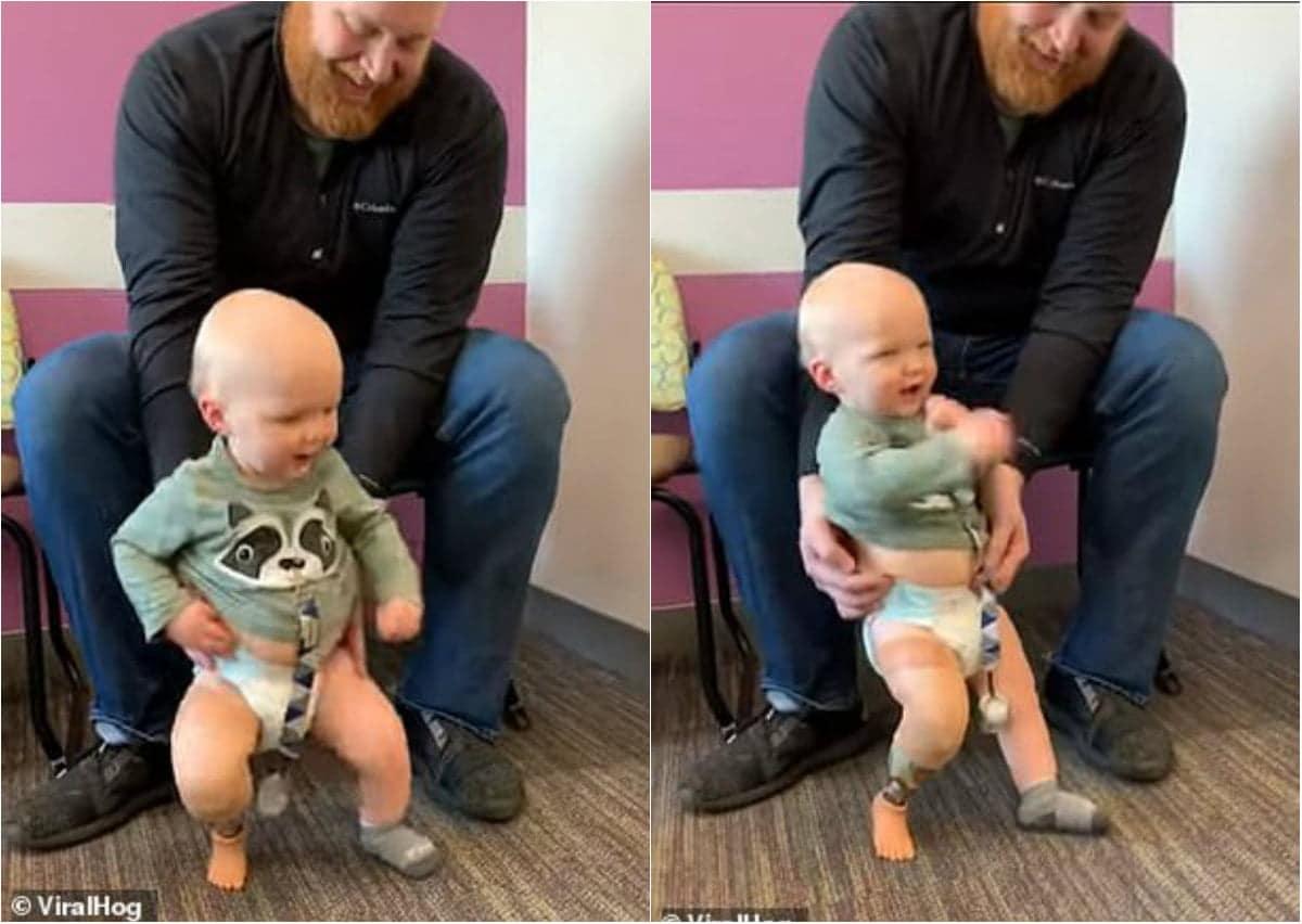 VIDEO Un băiețel născut fără un picior dansează pentru prima dată, mulțumită unei proteze