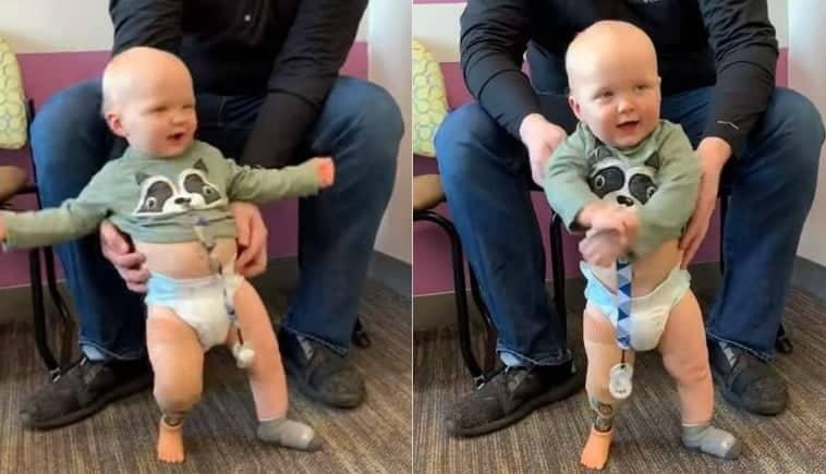 Un băiețel născut fără un picior dansează pentru prima dată, mulțumită unei proteze VIDEO  | Demamici.ro