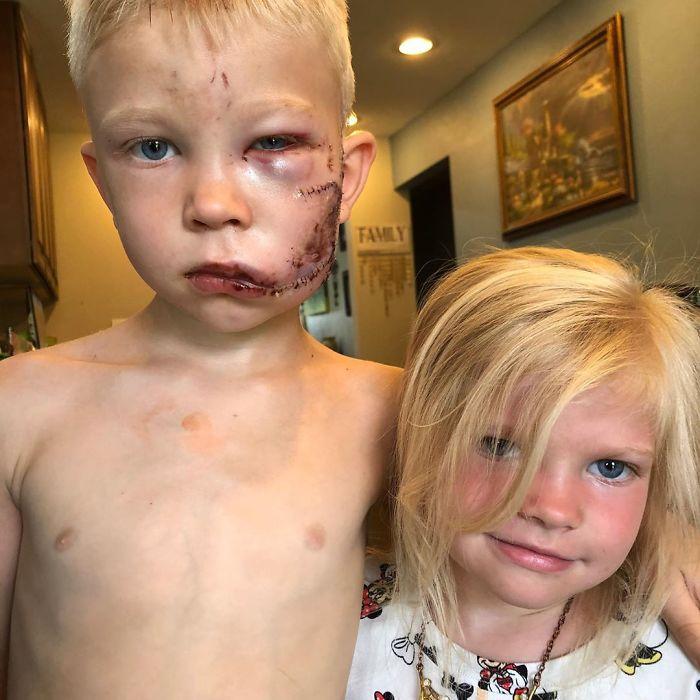 Și-a salvat sora din colții unui câine, iar acum își poartă cicatricea ca un supererou. Chiar și vedetele au lăudat gestul băiețelului