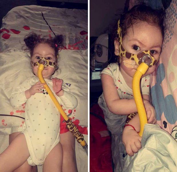 """Alessia respiră zi de zi prin """"sonda-girafă"""" din cauza unei maladii cumplite. La 1 an și jumătate, fetița a învățat deja că viața e o luptă"""