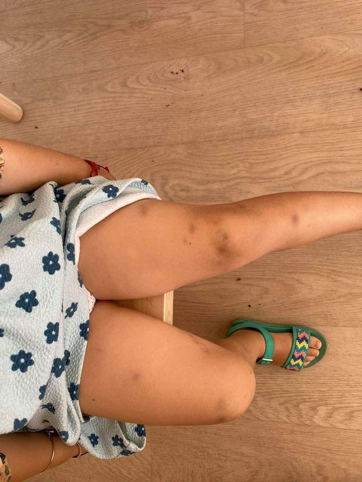 Aimee Maria, o minune de 3 anișori, are nevoie urgentă de sânge! Amy luptă cu leucemia | Demamici.ro