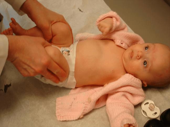 Ecografia de șold la bebeluși. Importanța ei în prevenirea și tratarea displaziei de șold | Demamici.ro