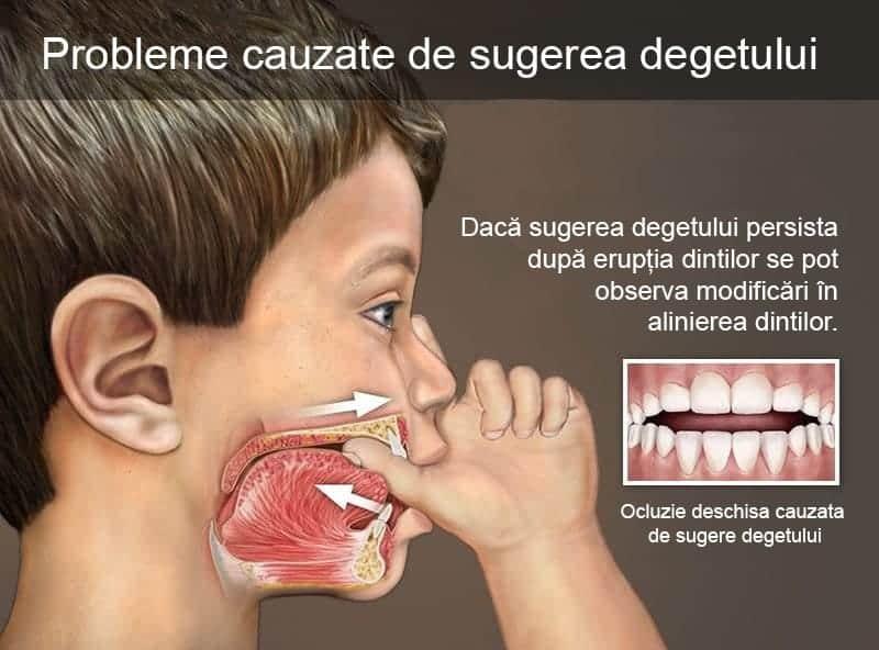 Demineralizarea dinților. Din ce cauză apare, cum o recunoaștem și cum se tratează? Interviu cu Dr. Sfedu Anamaria Virginia - medic pedodont   Demamici.ro