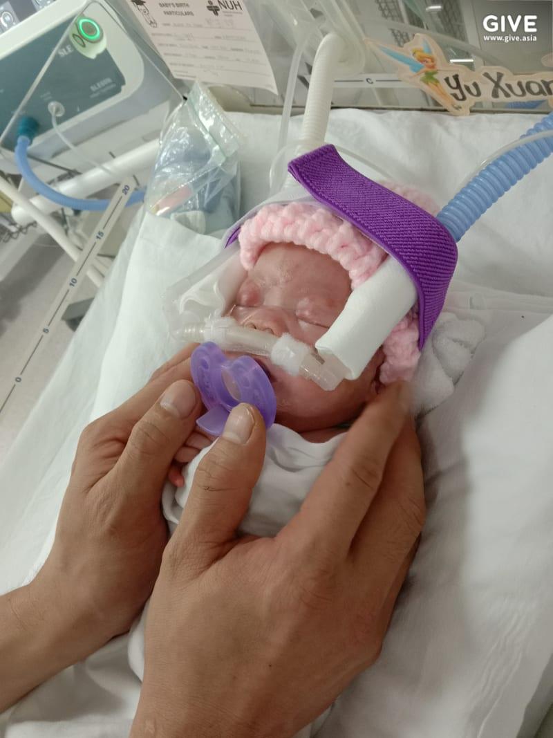 Cel mai mic bebeluș din lume s-a născut cu greutatea unui măr. Fetița a fost externată după 13 luni de spitalizare | Demamici.ro